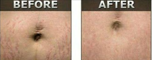 microneedles Miami Result